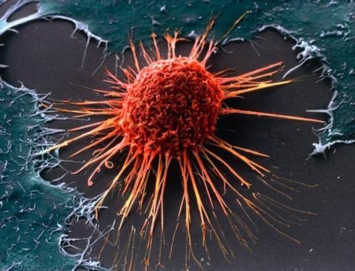 Trudno przytoczyć konkretne fotografie, myślę jednak, że rak szyjki macicy i virus hpv zadośćuczyni za mikro i makro kosmos.